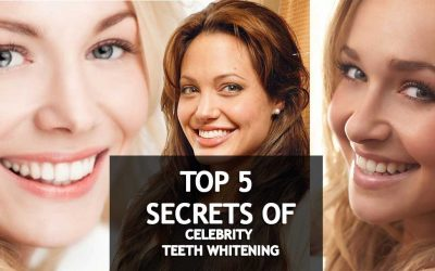 5 Secrets to Getting Whiter Teeth Like a Celebrity's