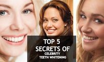 5 Secrets to Getting Whiter Teeth Like a Celebrity