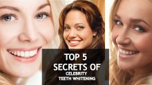 🎥5 Celebrity Teeth Whitening Secrets (Revealed)